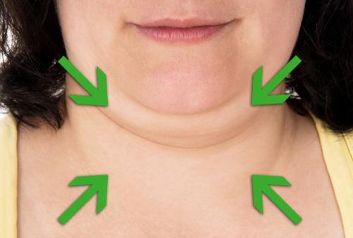 Le double menton: Voici 4 astuces à absolument connaître