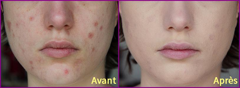 cicatrices-acnc3a9-avant-aprc3a8s-vichy-dermablend1