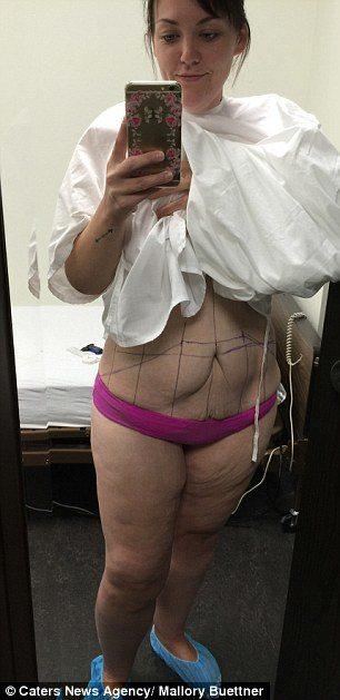 Elle pesait 165 kg ! en perdant 95 elle puis porte un..