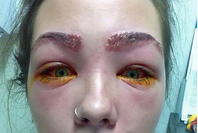 Cette jeune fille a failli devenir aveugle apr s s 39 tre teint les sourcils cocktail - Depression rester au lit ...