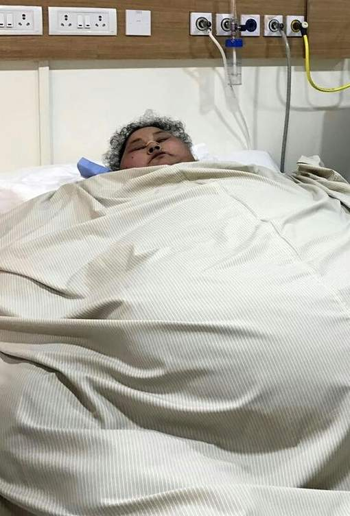 "This handout photograph released by The Saifee Hospital on March 9, 2017, shows Egyptian patient Eman Ahmed Abd El Aty as she lies in a hospital bed at The Saifee Hospital in Mumbai on February 11, 2017, ahead of an operation. Indian doctors said March 9, 2017, that an Egyptian believed to be the world's heaviest woman had successfully undergone weight-loss surgery after losing over 100 kilogrammes (220 pounds). Eman Ahmed Abd El Aty, who previously weighed around 500 kgs, had not left her house in Egypt in over two decades until arriving in Mumbai last month for bariatric surgery. -------RESTRICTED TO EDITORIAL USE - MANDATORY CREDIT ""AFP PHOTO / SAIFEE HOSPITAL"" - NO MARKETING NO ADVERTISING CAMPAIGNS - DISTRIBUTED AS A SERVICE TO CLIENTS------ / AFP PHOTO / SAIFEE HOSPITAL / Indranil MUKHERJEE / RESTRICTED TO EDITORIAL USE - MANDATORY CREDIT ""AFP PHOTO / SAIFEE HOSPITAL"" - NO MARKETING NO ADVERTISING CAMPAIGNS - DISTRIBUTED AS A SERVICE TO CLIENTS"