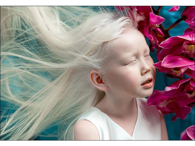 from Gunner naked albino woman girl