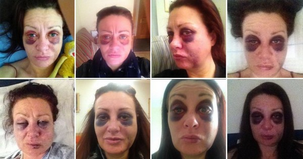 MEDIAGRAB: Brave woman took selfies of her battered face over six weeks to document the shocking reality of domestic violence Girlfriend who was battered and throttled by her ex shares a daily selfie documenting her recovery Caroline Way, of Axbridge, Somerset, was beaten by ex-boyfriend Deke Orriss She was left with a broken jaw, cracked eye socket, black eyes and blurred vision  As she recovered, it was therapeutic to watch her wounds change every day She hopes that her story will help inspire victims healing from their own wounds Orriss was sentenced to 18 months, with a two-year suspension, after the attack Photo credit: Caroline Way/ Facebook
