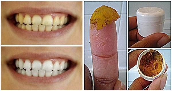 voici un traitement de maladies de gencives et le blanchissements des dents ce rem de naturelle. Black Bedroom Furniture Sets. Home Design Ideas