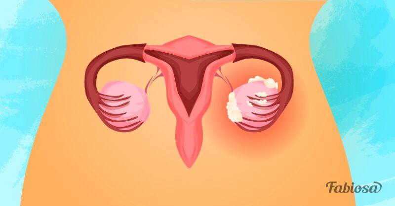 5 premiers sympt mes du cancer des ovaires et ce qu il faut faire pour le pr venir cocktail. Black Bedroom Furniture Sets. Home Design Ideas
